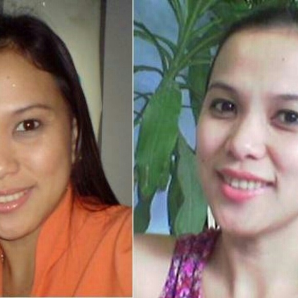Other - Extraordinary results....kojic lightening soap